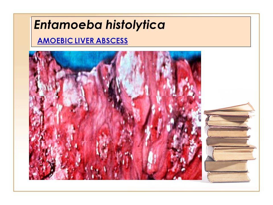 Entamoeba histolytica AMOEBIC LIVER ABSCESS
