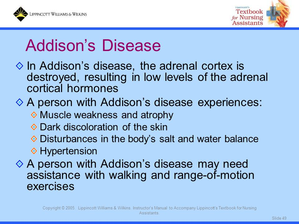 Addison's Disease In Addison's disease, the adrenal cortex is destroyed, resulting in low levels of the adrenal cortical hormones.