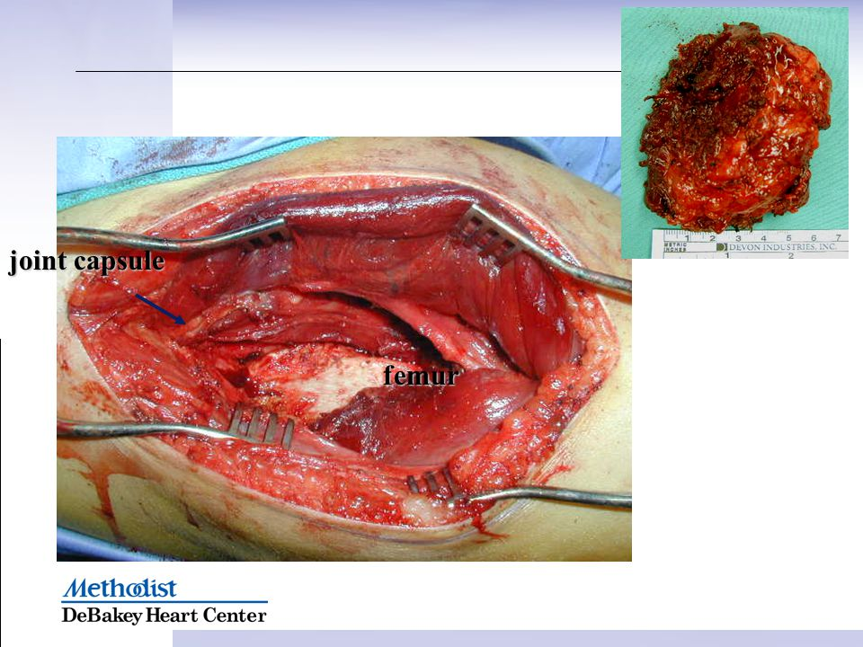 joint capsule femur