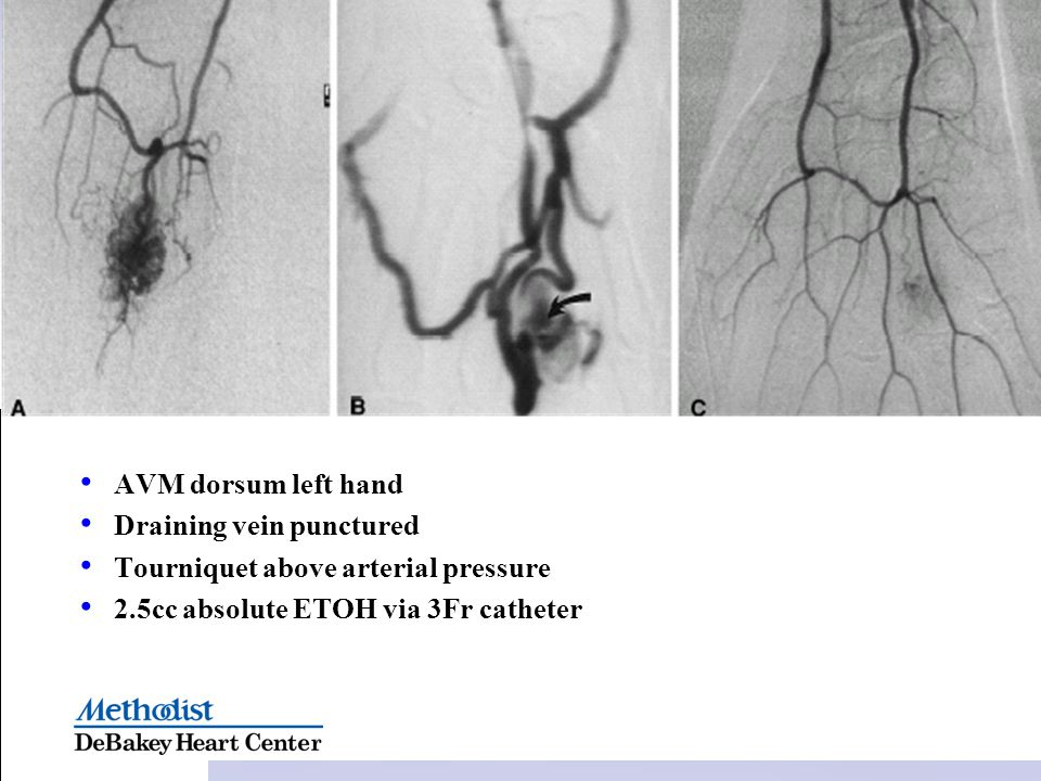 AVM dorsum left hand Draining vein punctured. Tourniquet above arterial pressure.