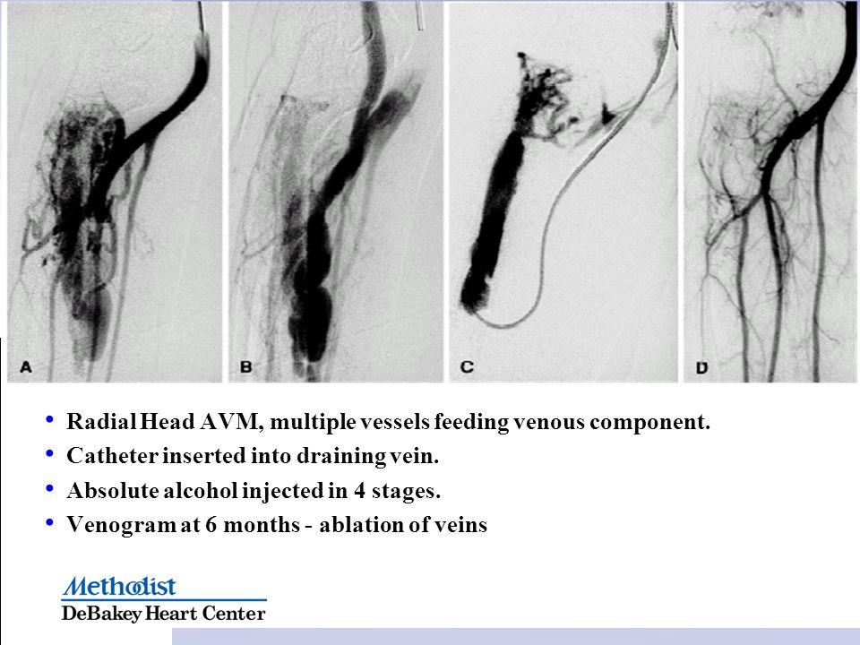 Radial Head AVM, multiple vessels feeding venous component.