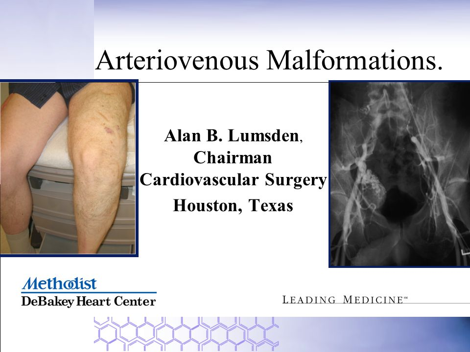 Arteriovenous Malformations.