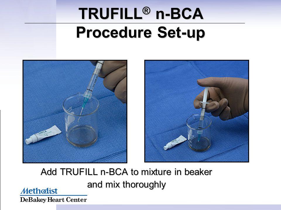 TRUFILL® n-BCA Procedure Set-up