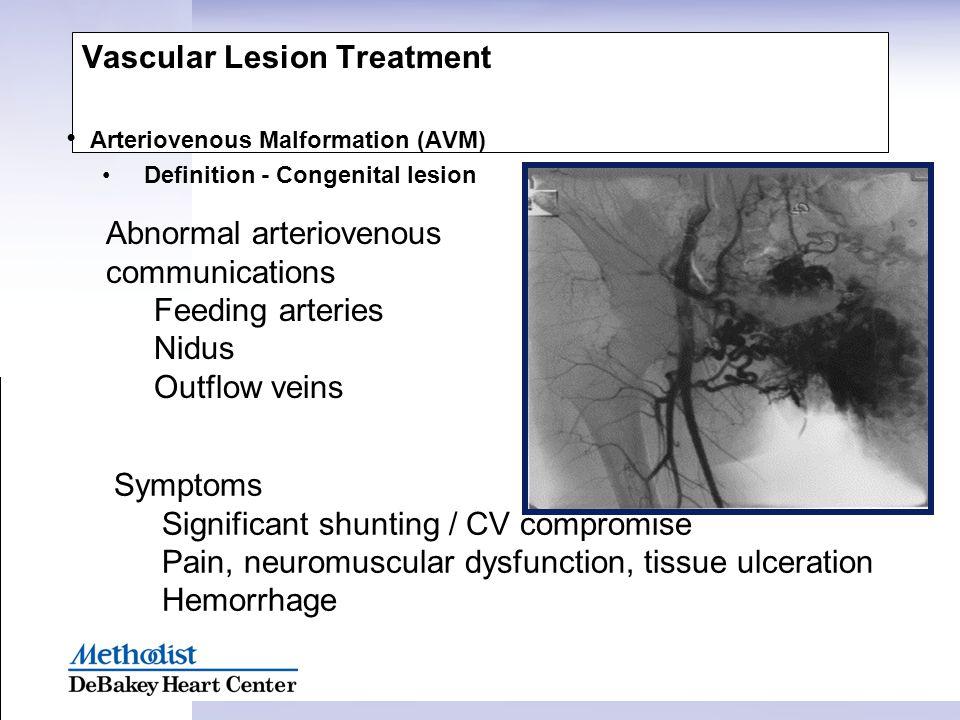 Vascular Lesion Treatment