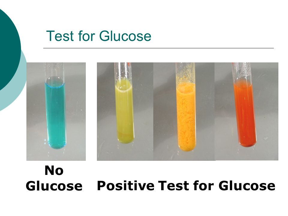 Test for Glucose No Glucose Positive Test for Glucose