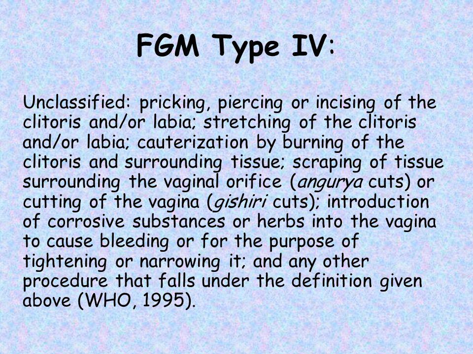 FGM Type IV: