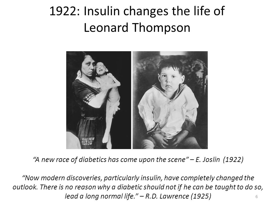 1922: Insulin changes the life of Leonard Thompson