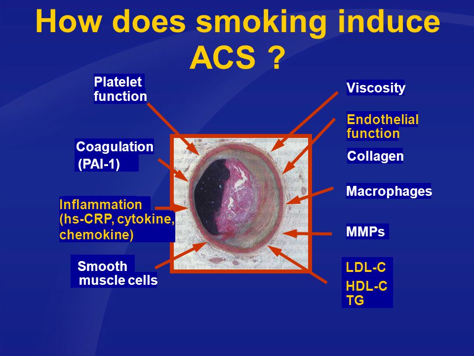 How does smoking induce ACS