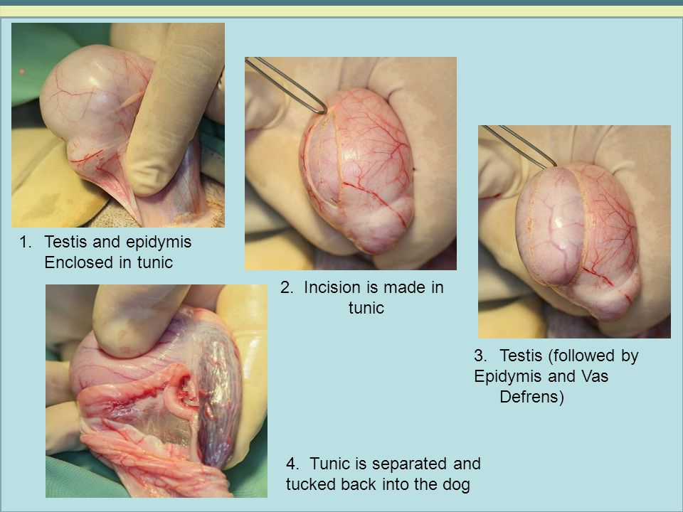 Testis and epidymis Enclosed in tunic. 2. Incision is made in tunic. Testis (followed by. Epidymis and Vas Defrens)