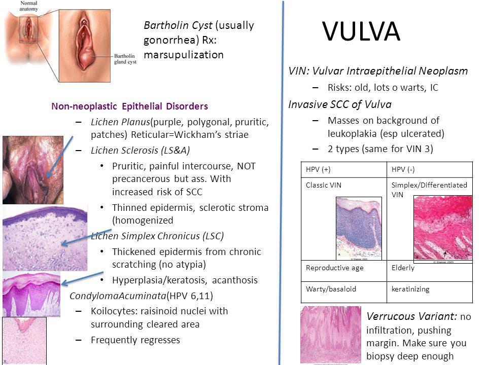 VULVA Bartholin Cyst (usually gonorrhea) Rx: marsupulization
