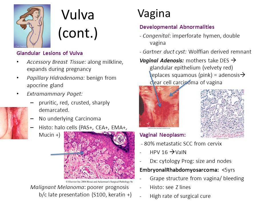 Vulva (cont.) Vagina Developmental Abnormalities