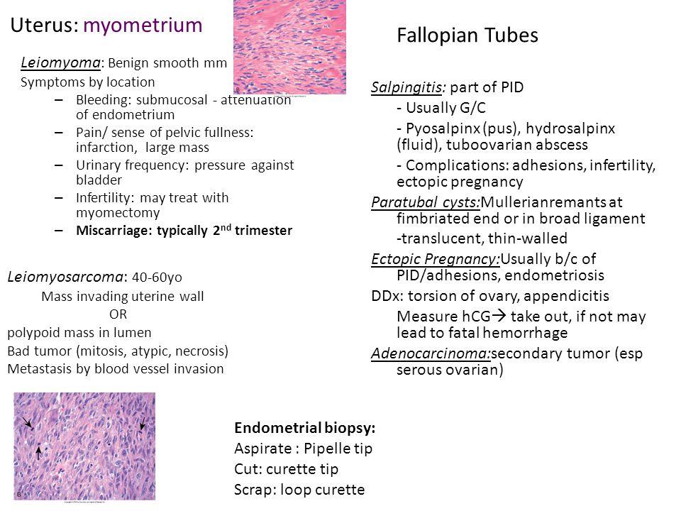 Uterus: myometrium Fallopian Tubes Leiomyoma: Benign smooth mm