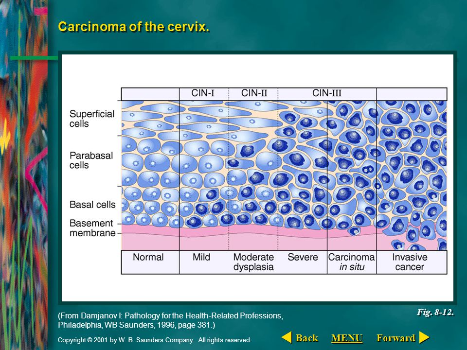 Carcinoma of the cervix.