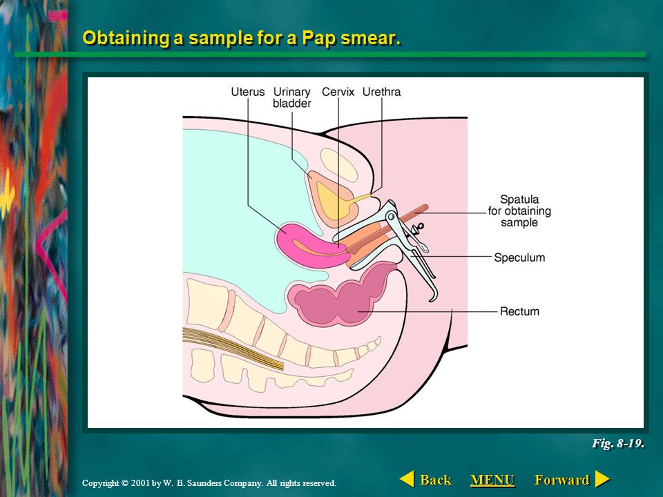 Obtaining a sample for a Pap smear.