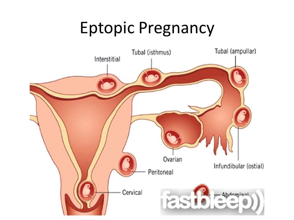 Eptopic Pregnancy