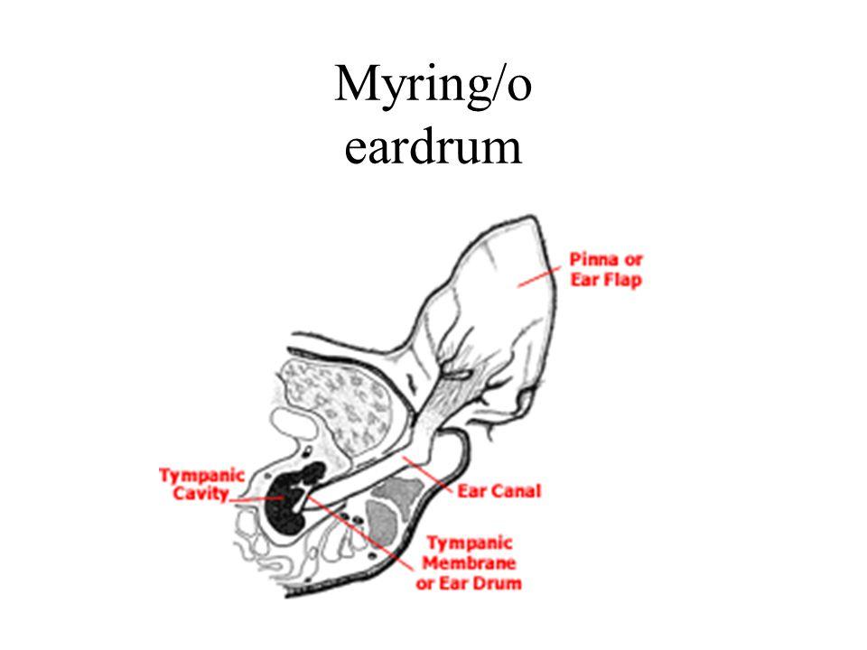 Myring/o eardrum