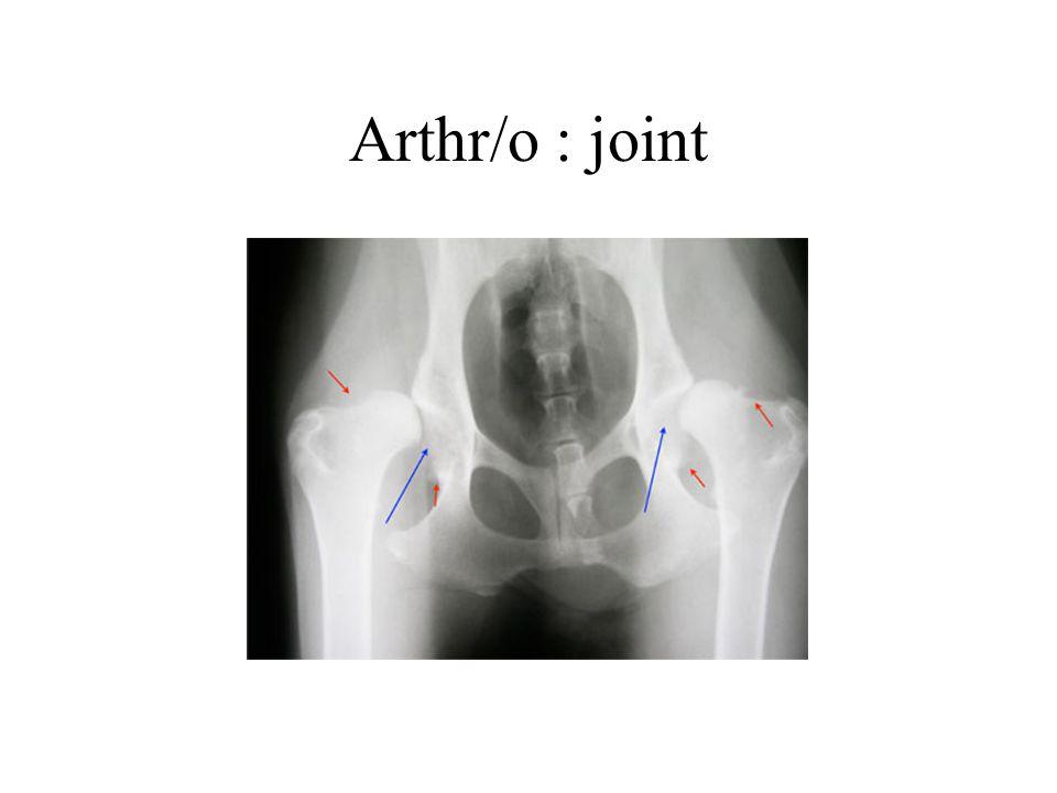 Arthr/o : joint