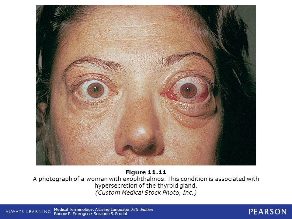 Figure 11. 11 A photograph of a woman with exophthalmos