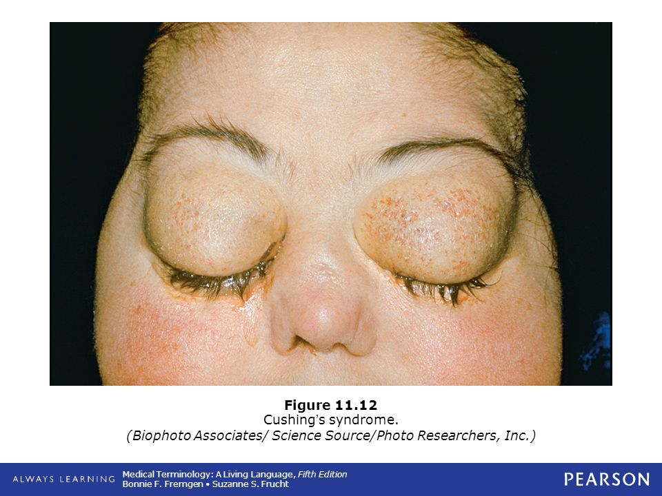 Figure 11. 12 Cushing's syndrome