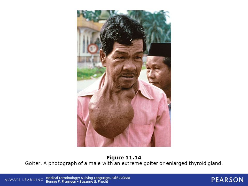 Figure 11.14 Goiter. A photograph of a male with an extreme goiter or enlarged thyroid gland.