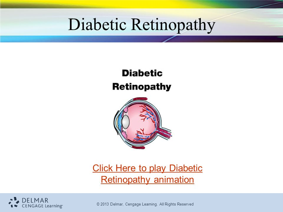 Click Here to play Diabetic Retinopathy animation