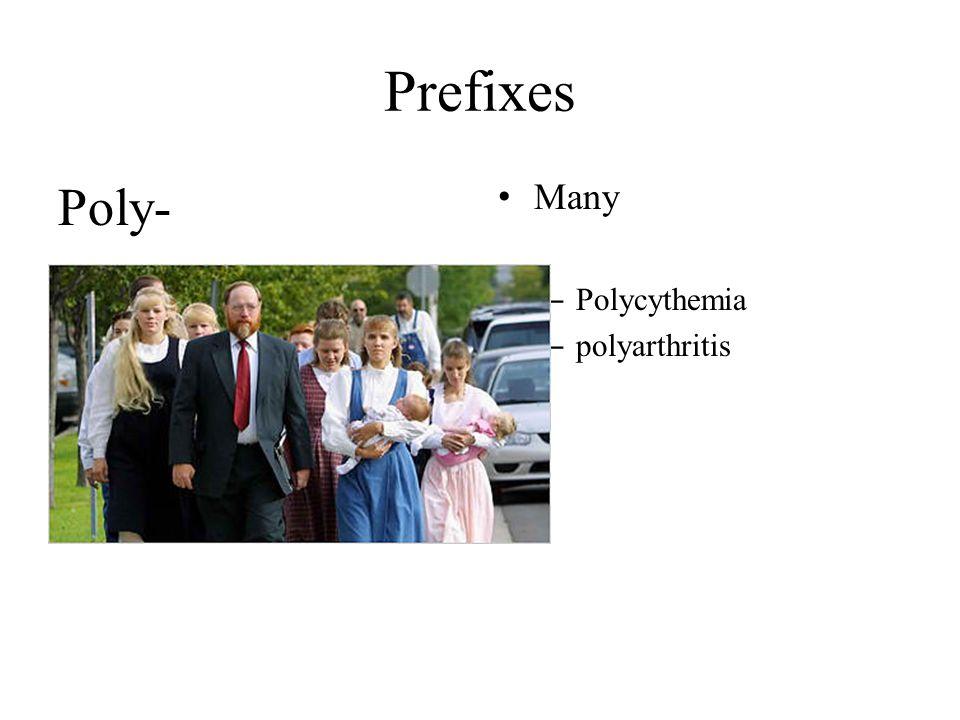Prefixes Poly- Many Polycythemia polyarthritis