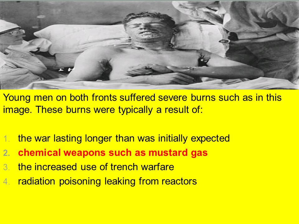Young men on both fronts suffered severe burns such as in this image