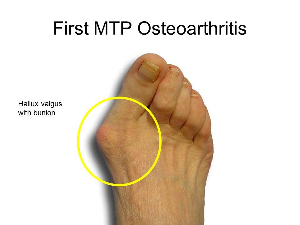 First MTP Osteoarthritis