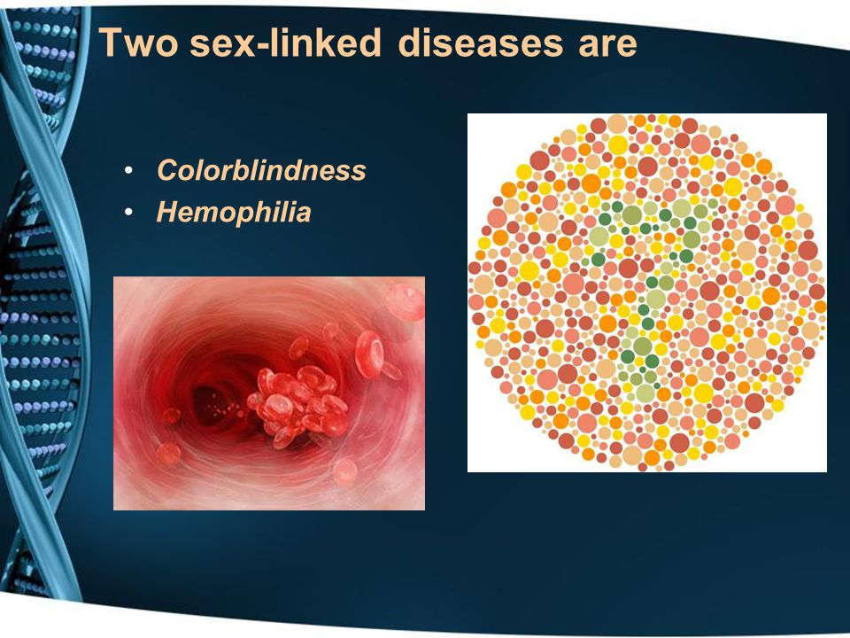 Two sex-linked diseases are