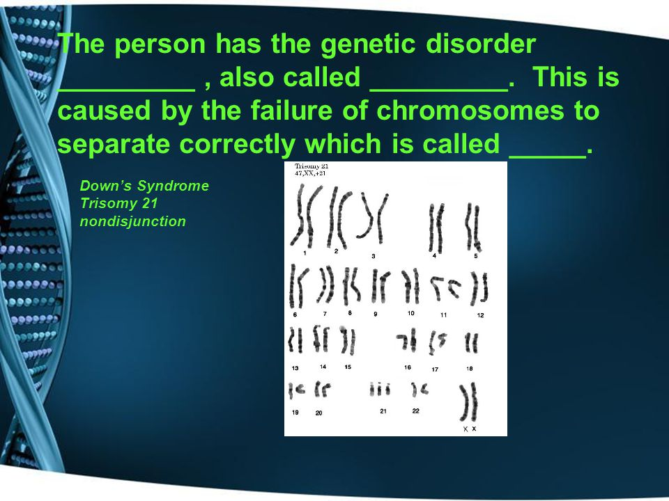 The person has the genetic disorder _________ , also called _________