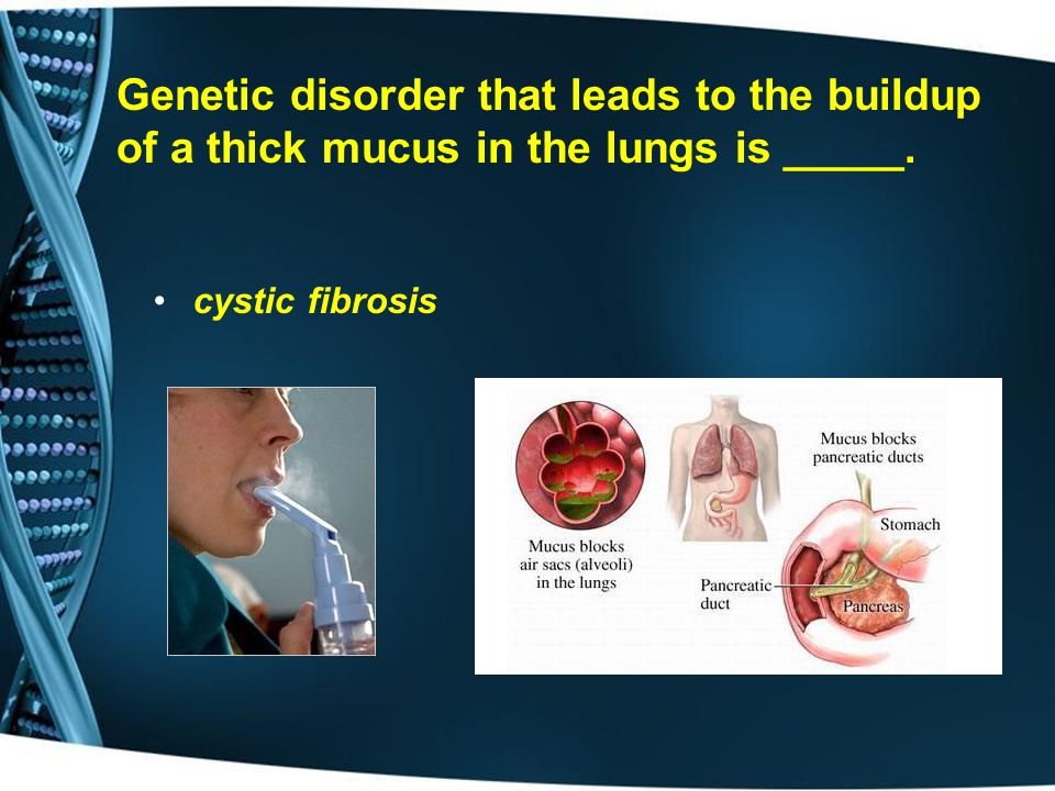 Genetic disorder that leads to the buildup of a thick mucus in the lungs is _____.