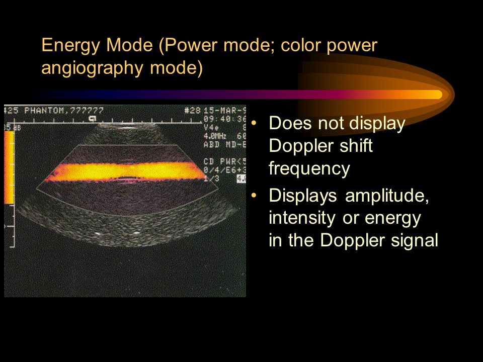 Energy Mode (Power mode; color power angiography mode)