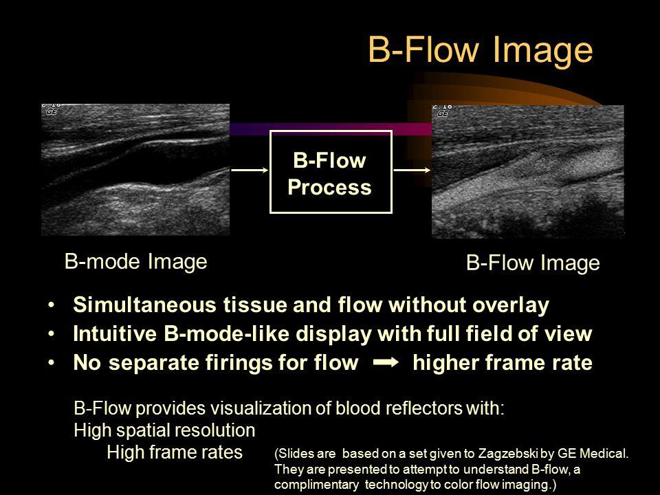 B-Flow Image B-Flow Process B-mode Image B-Flow Image