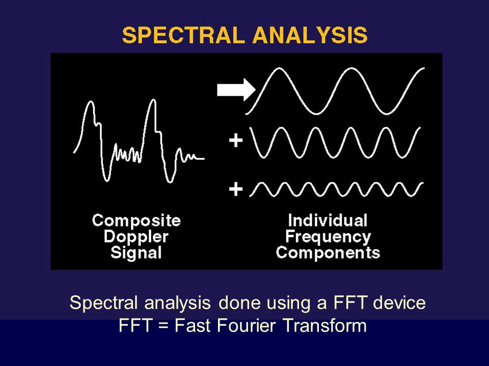 Spectral analysis done using a FFT device