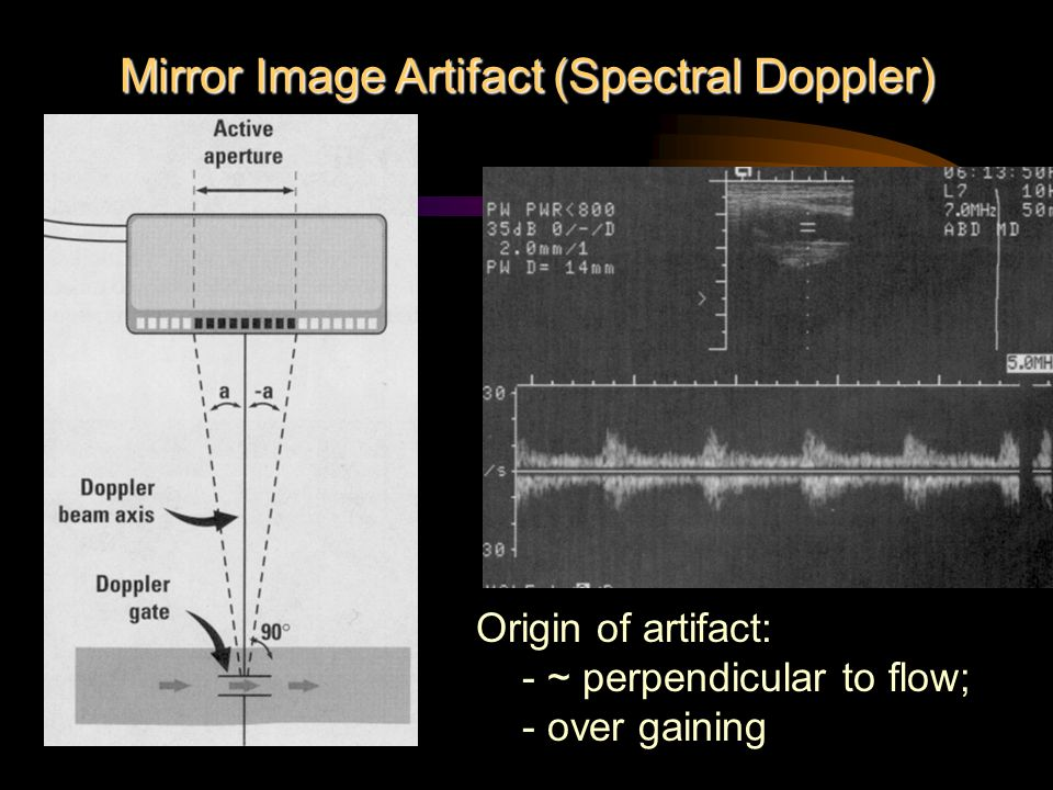 Mirror Image Artifact (Spectral Doppler)
