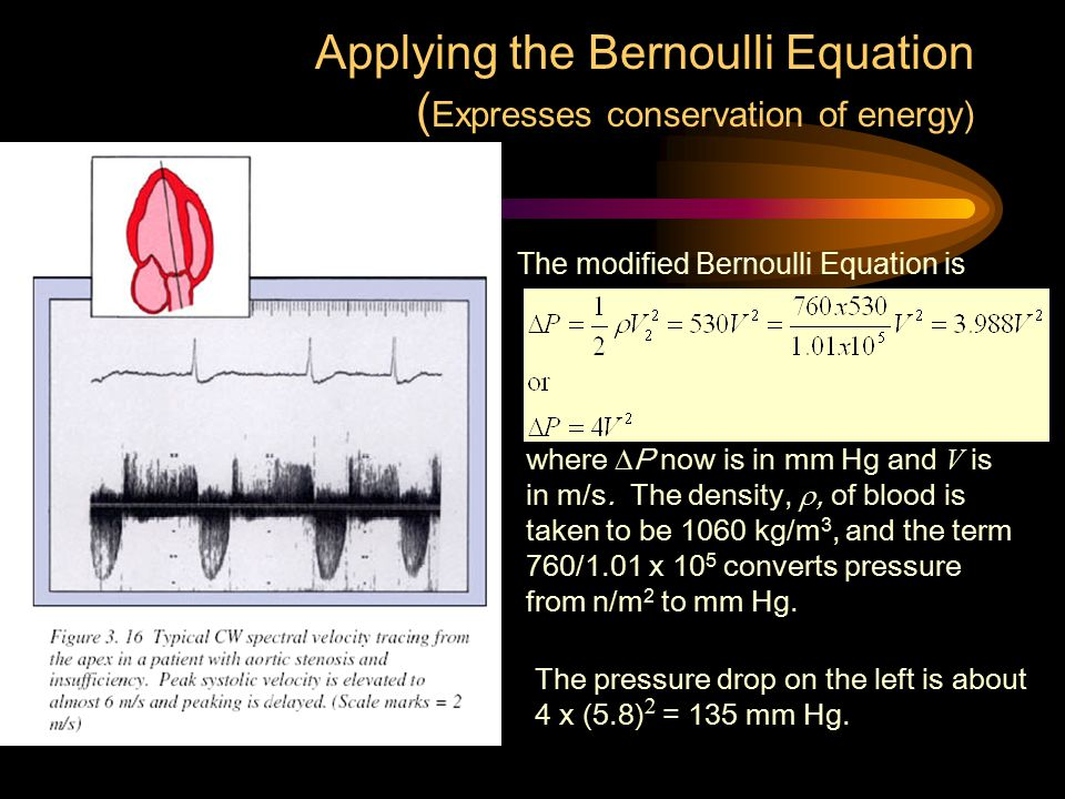 Applying the Bernoulli Equation (Expresses conservation of energy)