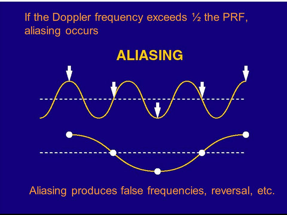 If the Doppler frequency exceeds ½ the PRF, aliasing occurs