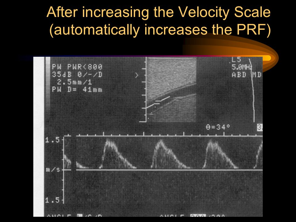 After increasing the Velocity Scale (automatically increases the PRF)