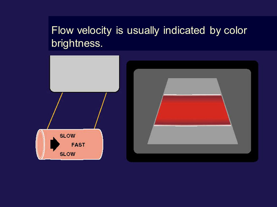 Flow velocity is usually indicated by color brightness.
