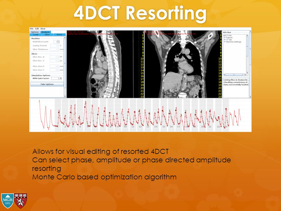 4DCT Resorting Allows for visual editing of resorted 4DCT