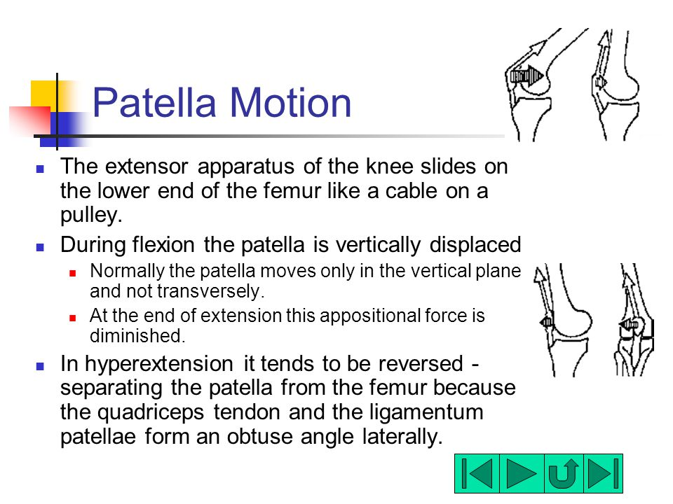 Patella Motion The extensor apparatus of the knee slides on the lower end of the femur like a cable on a pulley.