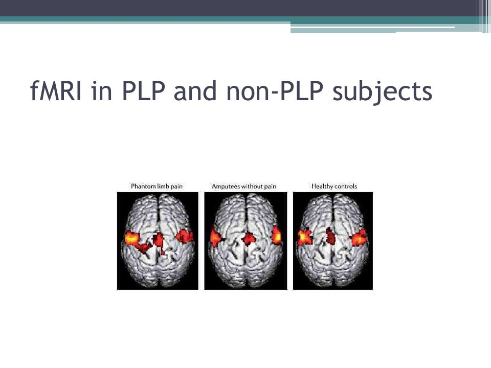 fMRI in PLP and non-PLP subjects