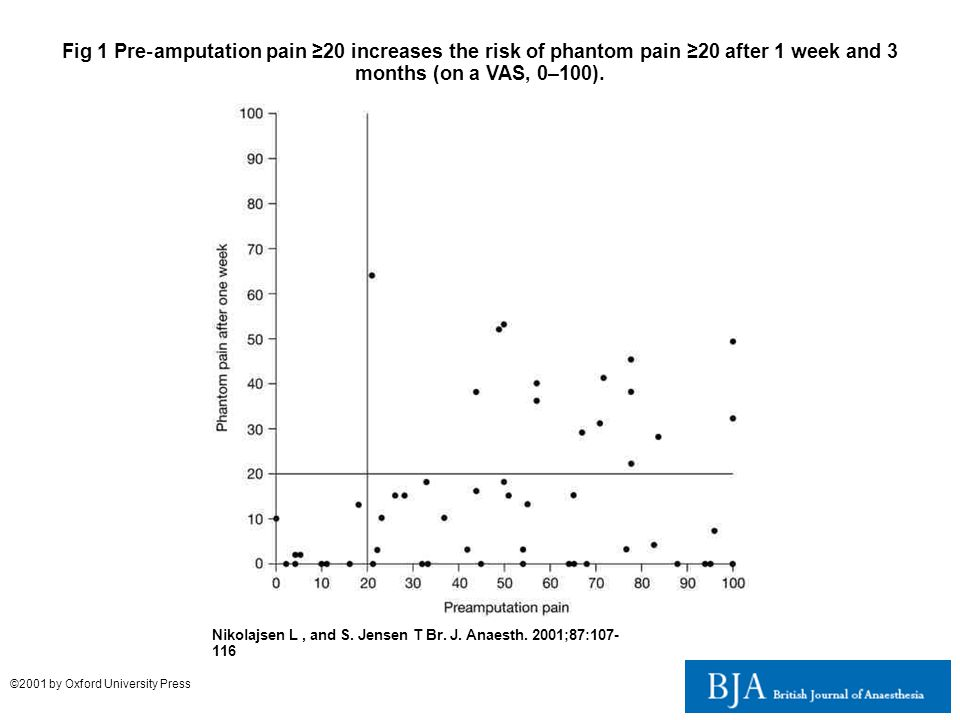 Fig 1 Pre‐amputation pain ≥20 increases the risk of phantom pain ≥20 after 1 week and 3 months (on a VAS, 0–100).