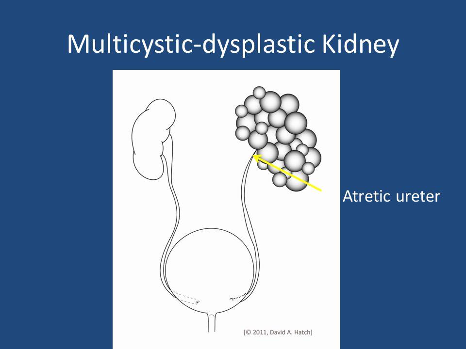 Multicystic-dysplastic Kidney