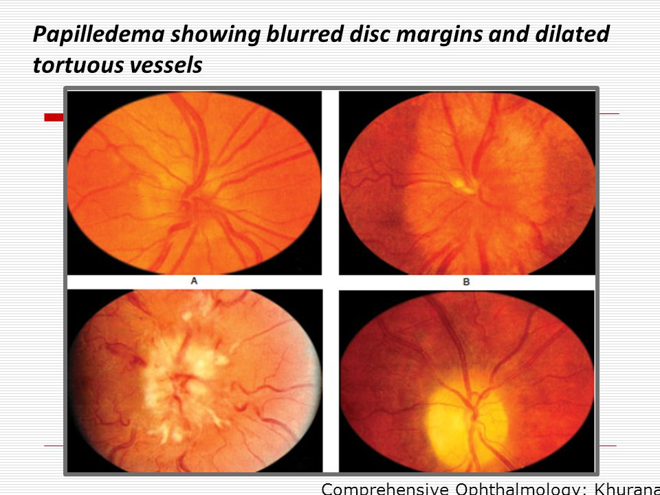 Papilledema showing blurred disc margins and dilated tortuous vessels