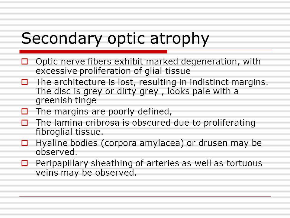 Secondary optic atrophy