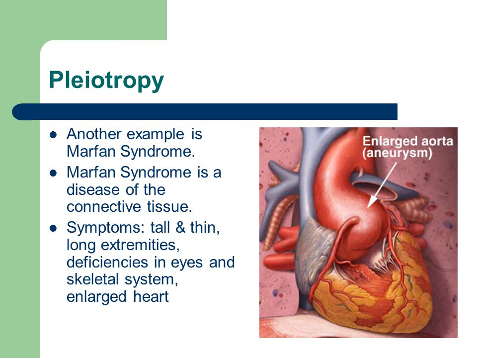 Pleiotropy Another example is Marfan Syndrome.