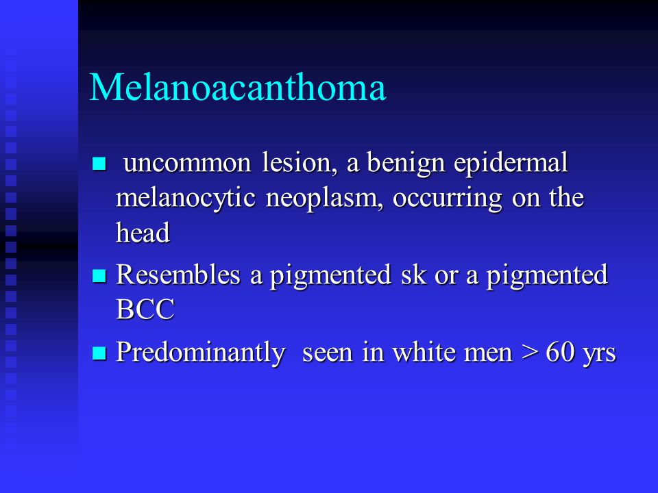 Melanoacanthoma uncommon lesion, a benign epidermal melanocytic neoplasm, occurring on the head. Resembles a pigmented sk or a pigmented BCC.