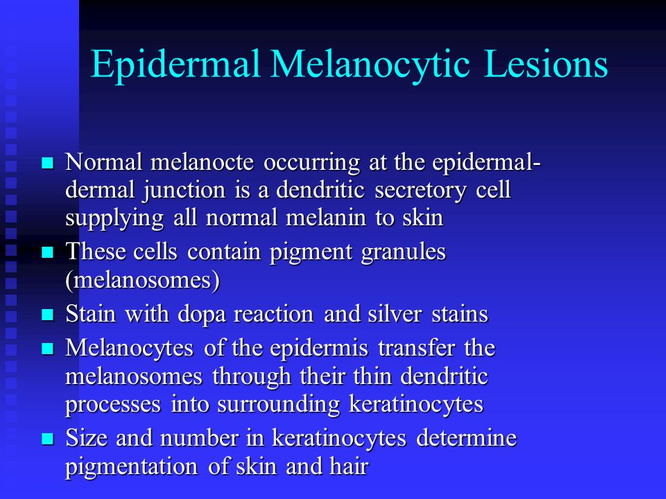 Epidermal Melanocytic Lesions