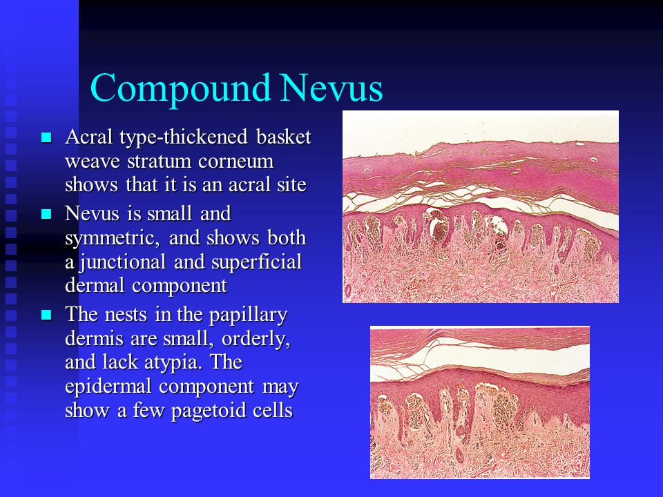 Compound Nevus Acral type-thickened basket weave stratum corneum shows that it is an acral site.